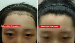 Hair transplant Melbourne