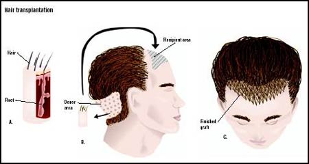 Surgical-hair-transplant