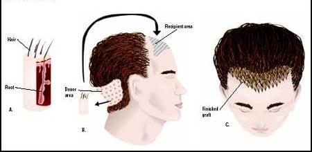 Hair Transplantation Surgery